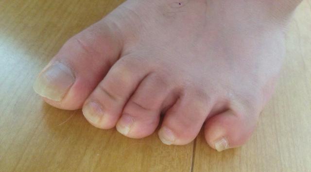 足指が変形